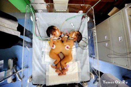 Операция по разделению сиамских близнецов